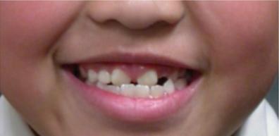reverse bite before expander treatment