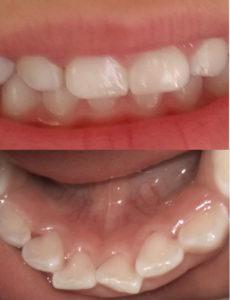 Clean child teeth