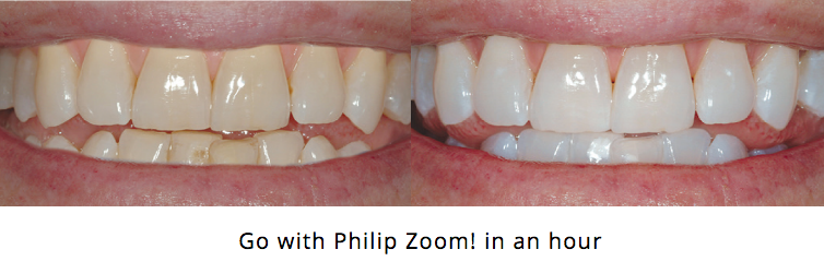 before and after - Go with Philip Zoom in one hour