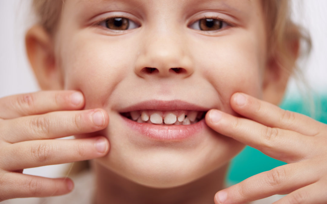 What Does a Cavity Look Like? Discovering Tooth Issues