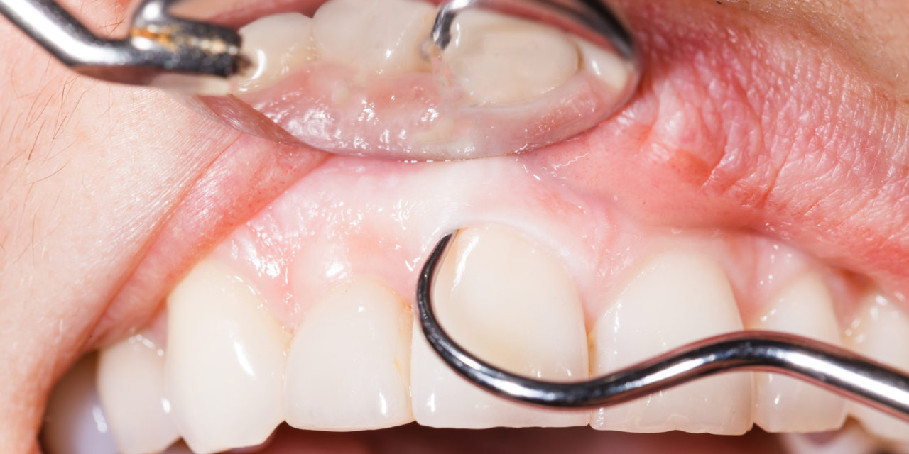 The Warning Signs You May Have Gum Disease