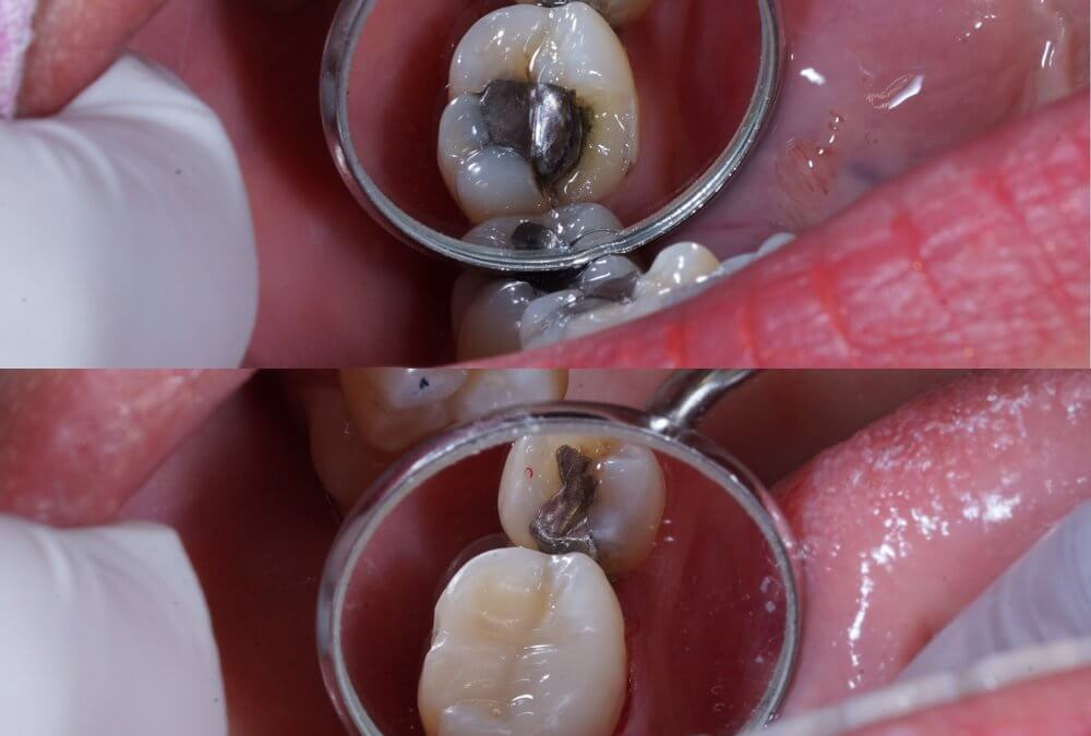 Why you need to ask your dentist if you need dental fillings…now